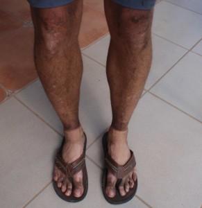 bruna och fina ben